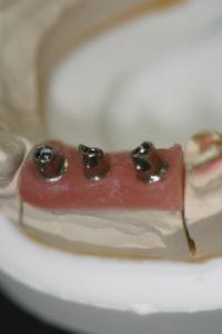 臼歯部インプラント上部構造装着